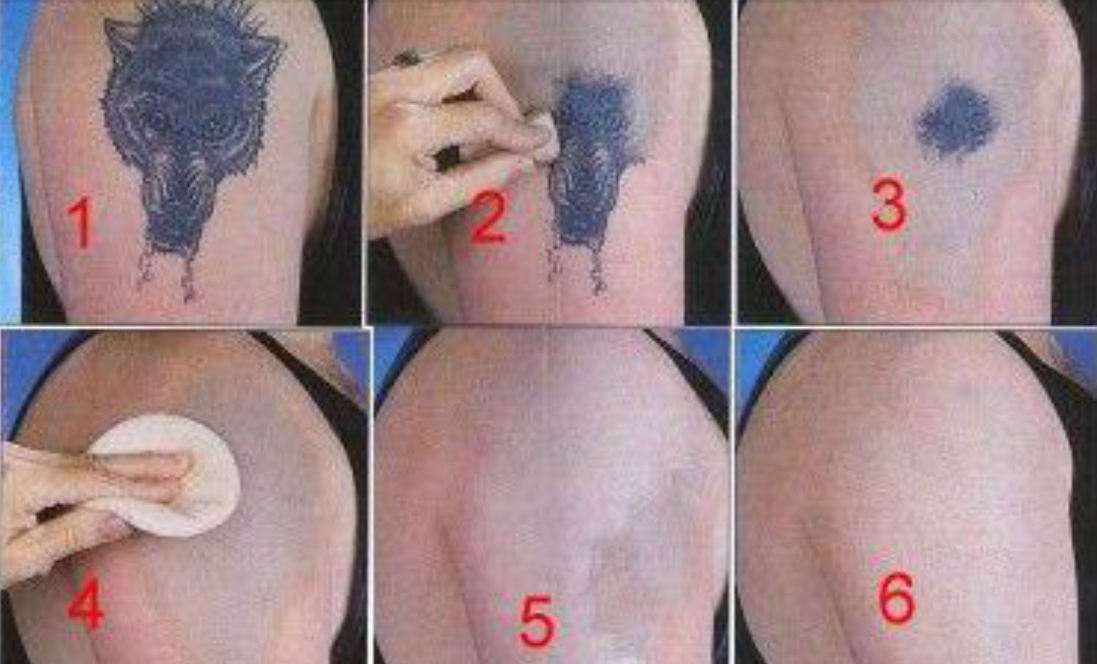 Home Tattoo Removal Guides | Best Concise Guide on Tattoo Removal at ...